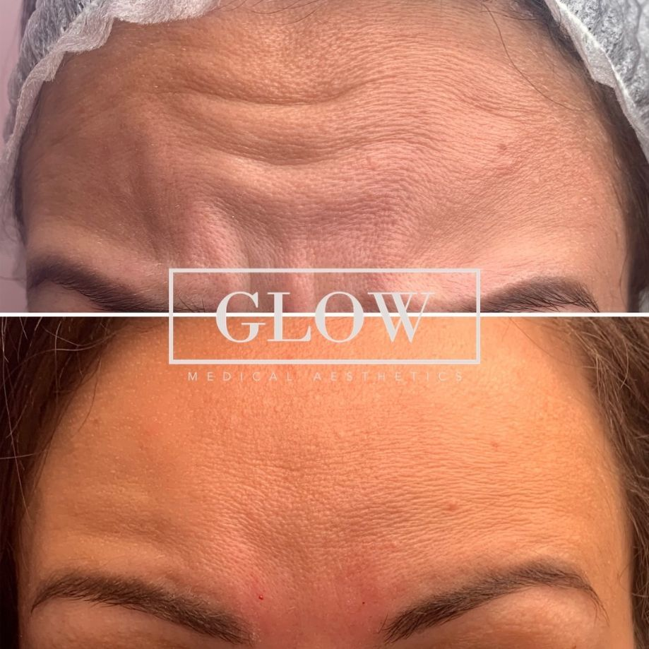 15% off your first treatment at Glow Medical Aesthetics